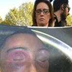 Stefano Cucchi, 3 carabinieri accusati di omicidio preterintenzionale e abuso di autorità
